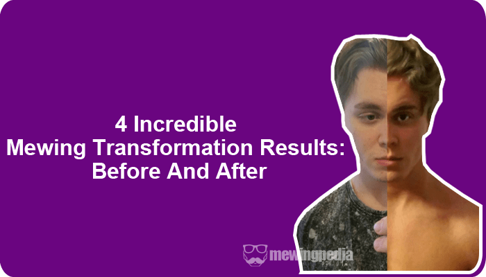 4 Incredible Mewing Transformation Results: Before And After