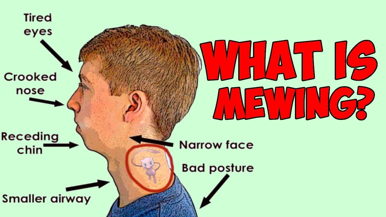 what is mewing?