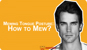 Mewing Tongue Posture: How to Mew