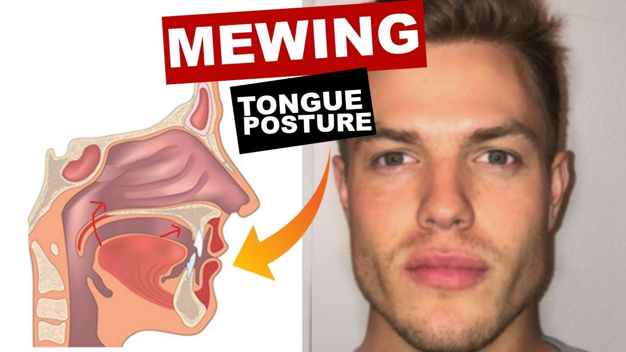 Mewing Tongue Posture | Brett Maverick