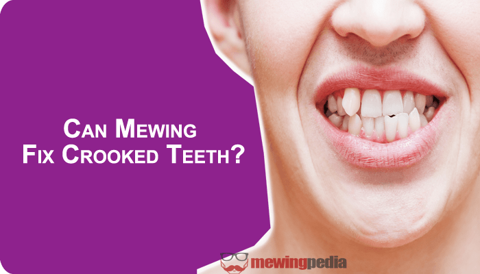 Can mewing fix crooked teeth?