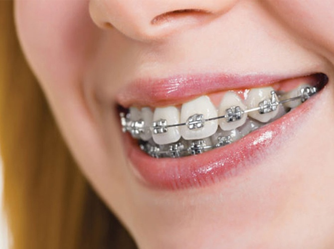 mewing with braces