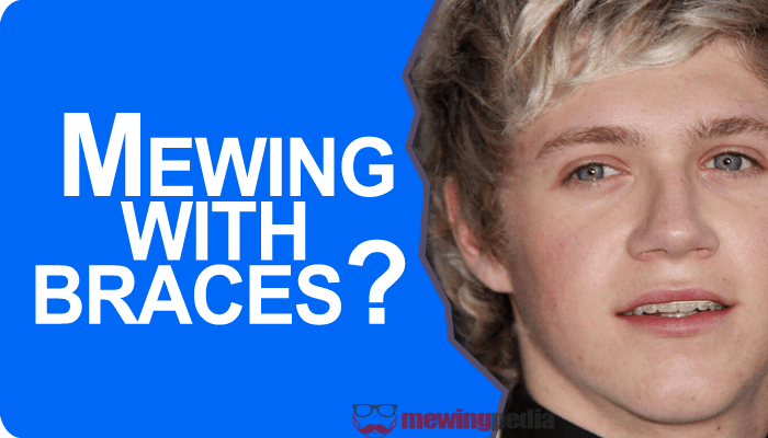 Mewing with braces? 5 things you must know