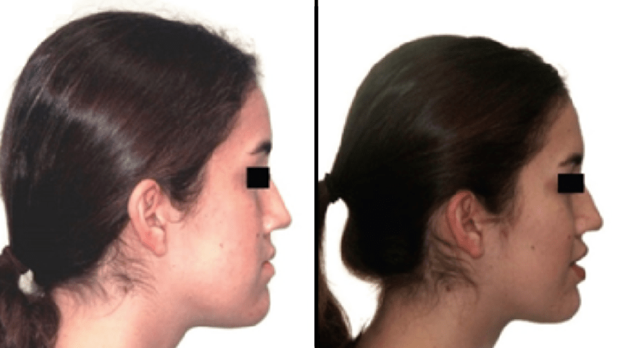 Face Pulling Results