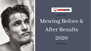 Mewing Results Before & After | Updated for 2021