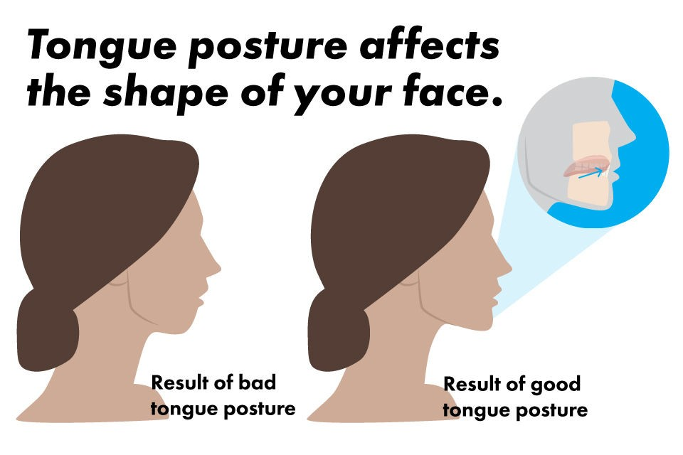 Proper tongue posture mewing