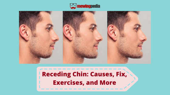 Receding Chin: Causes, Exercises, and Mewing