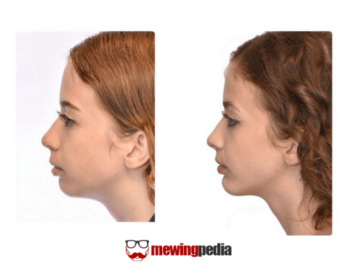 weak chin female