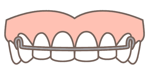 Retainers for Overbite