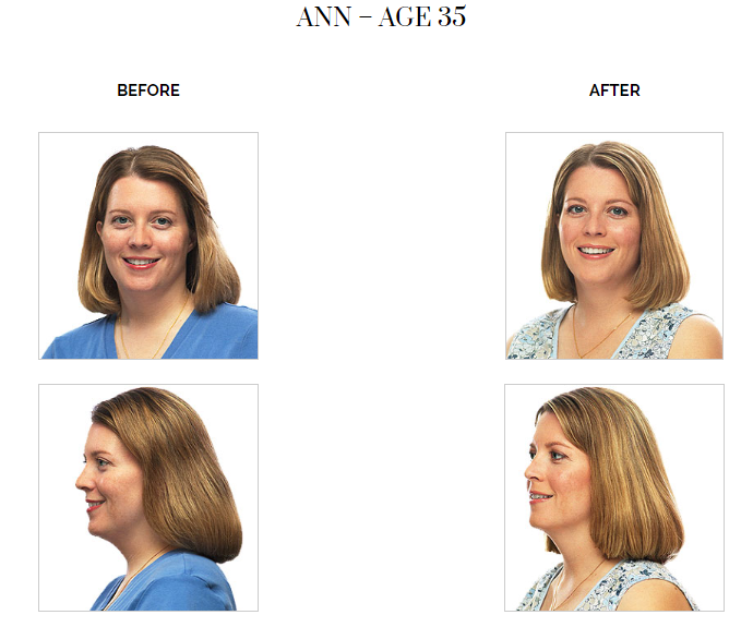 Facial Flex Before and After