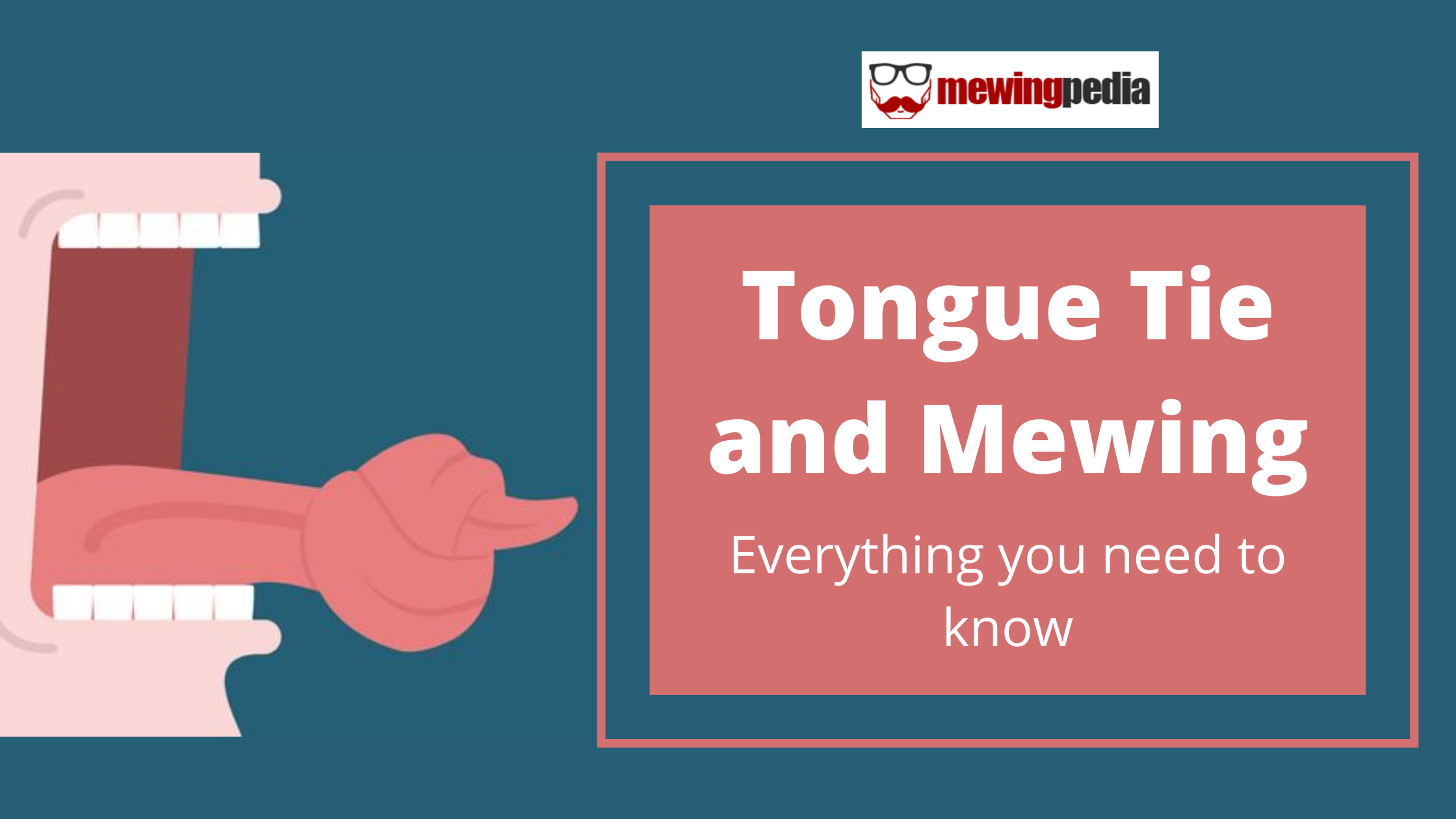 Tongue Tie and Mewing: Everything you need to know