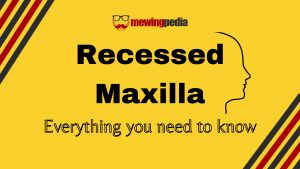 Recessed Maxilla: Everything you need to know