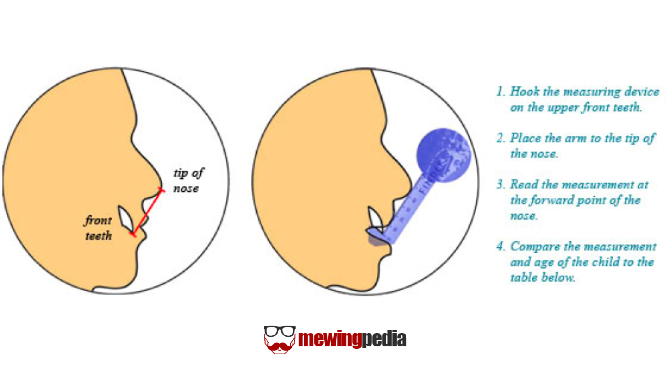 How to measure maxillary position?