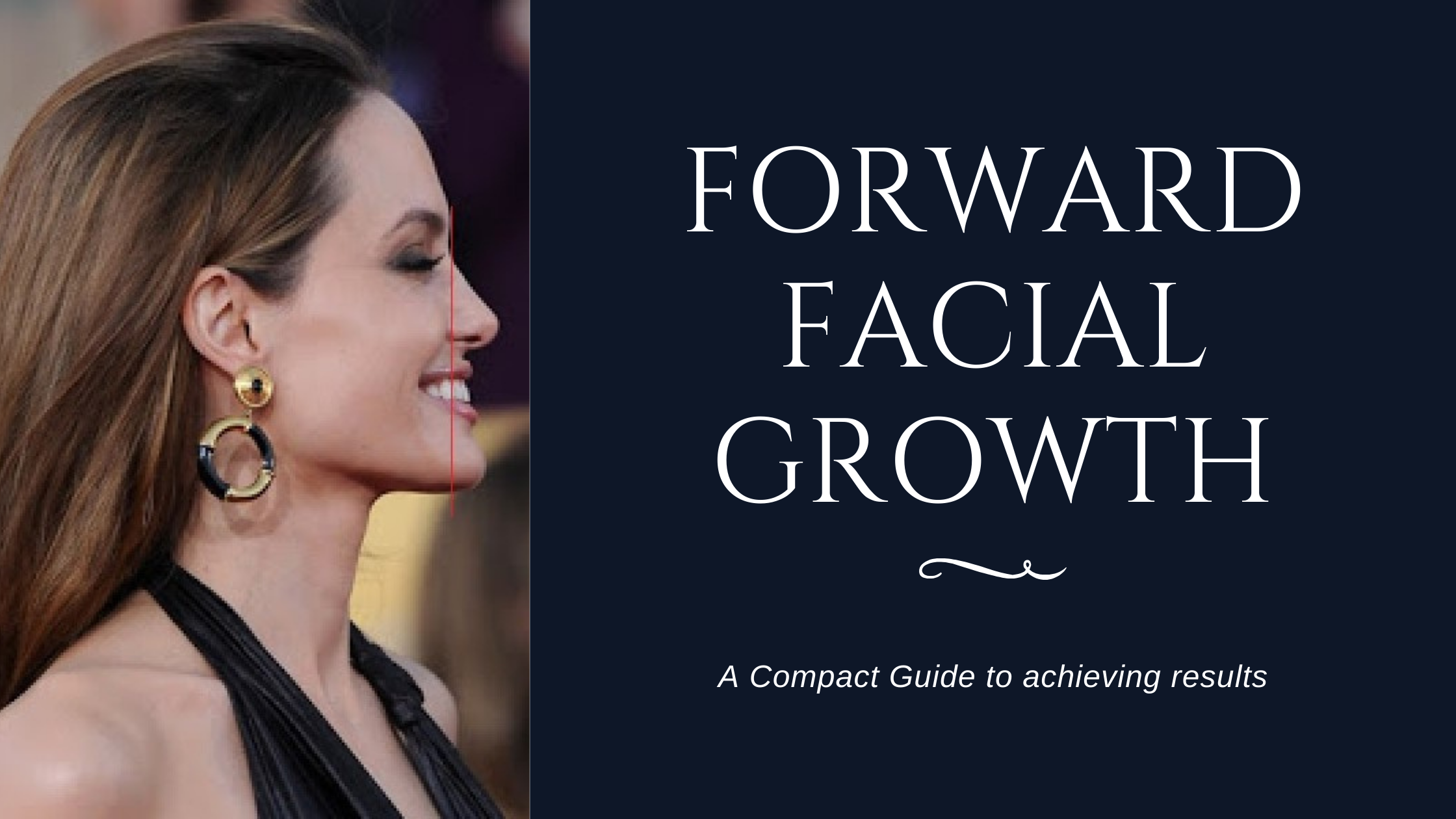 Forward Facial Growth: A Compact Guide