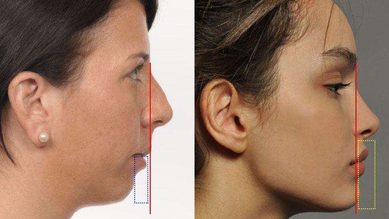 Forward facial growth and recessed jawline